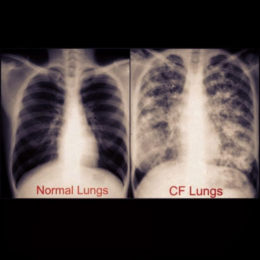 An X-ray shows differences between healthy set of lungs on the left and lungs with cystic fibrosis on the right and the damage it causes to them.