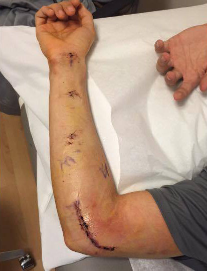 Bear Cubs Hill recovers from surgery